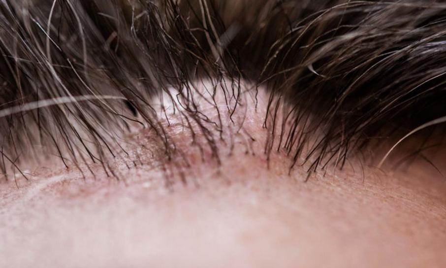 Talgdrüse in der Kopfhaut